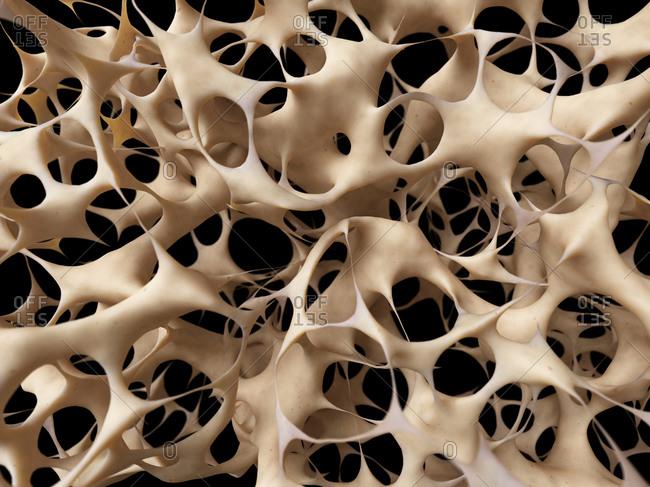 Human bones showing osteoporosis