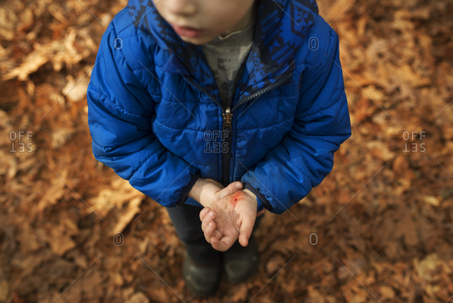 Boy with cut hand standing outside