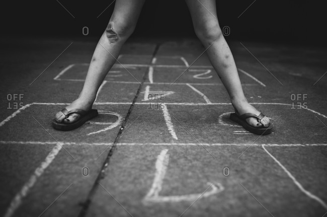 Child with banged up legs playing hopscotch