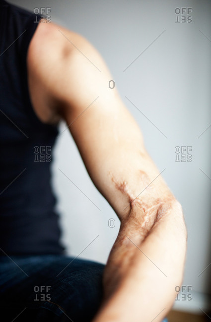 Woman with a scar on arm