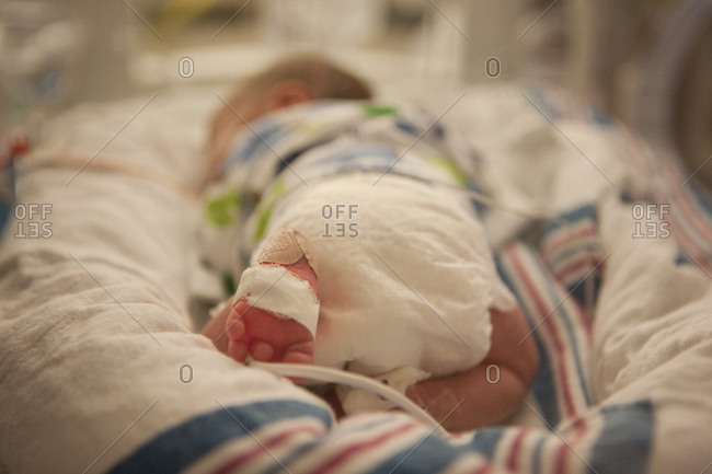 Close-up of tiny premature infant in intensive care