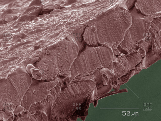 SEM of dental floss - Offset