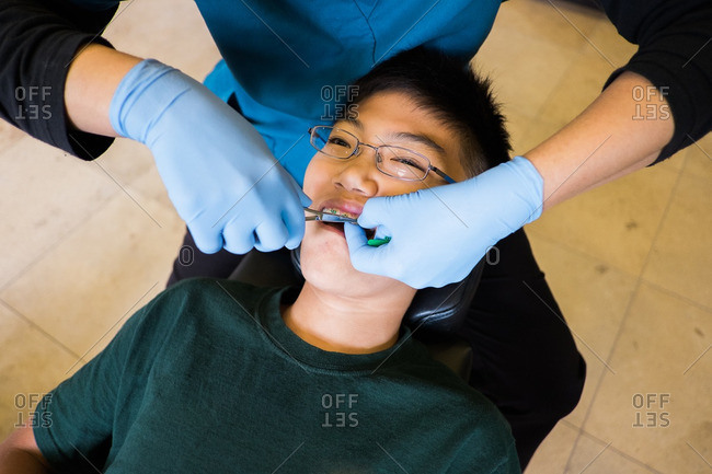 Asian boy having rubber bands put on braces