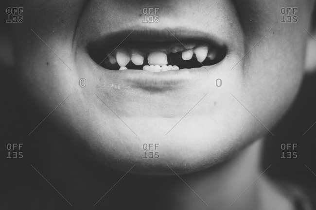 Little boy's mouth with tooth missing in black and white