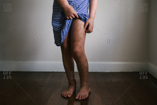 Little girl scratching her legs with eczema