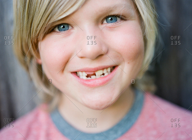 Boy with blonde hair and missing teeth smiling