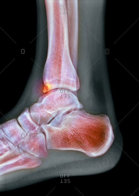 Tibial spur, X-ray
