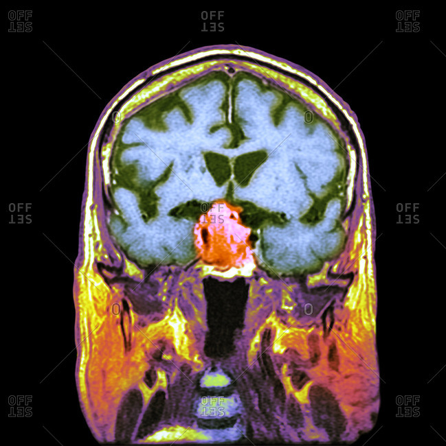Pituitary tumor, CT scan - Offset
