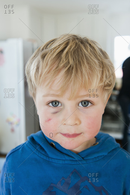 Sweden, Portrait of blonde little boy with black eye