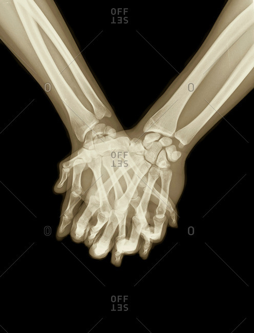 X-ray image of hands and fingers clasped