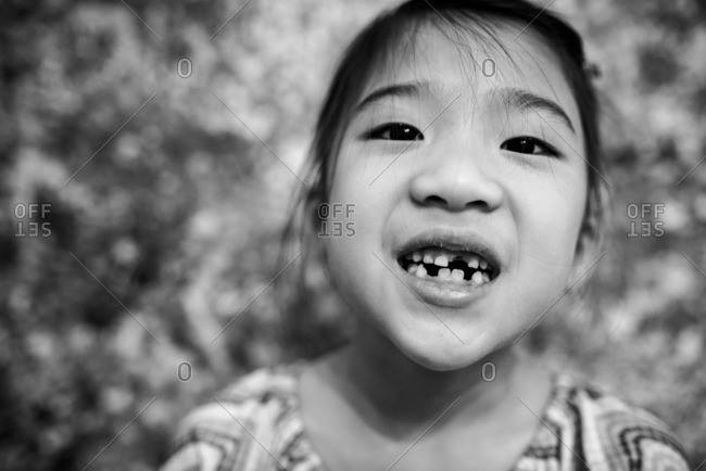 Little girl smiling and showing her missing teeth