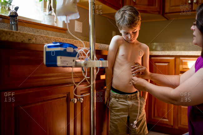 Mom placing son's gastric tube