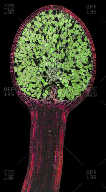 Liverwort spore capsule