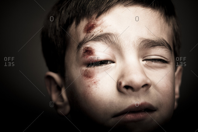 Mixed race boy with scrapes on his face