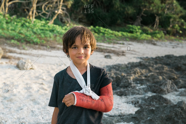Boy in rural setting with a cast