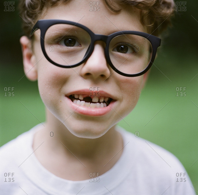 Boy with glasses missing front tooth