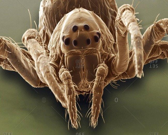 Baby spider, SEM