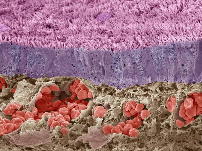 Trachea mucous membrane, SEM