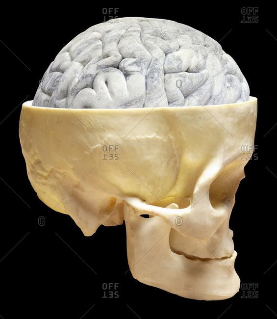 Brain and skull
