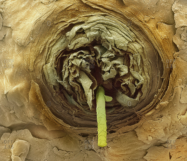 Eyelash follicle, SEM - Offset Collection