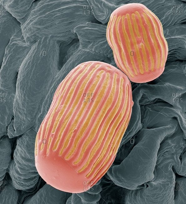 Colored scanning electron micrograph (SEM)
