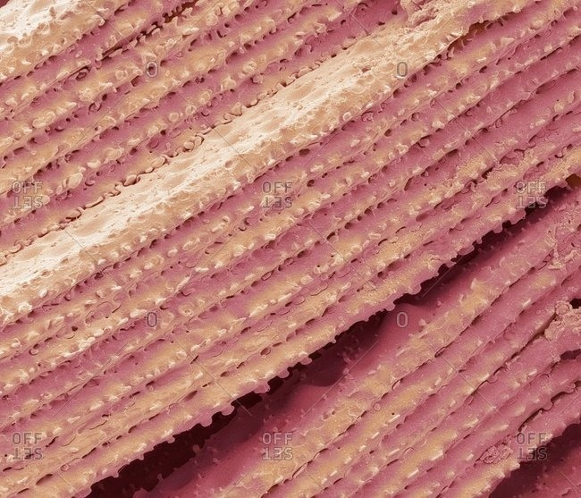 Colored scanning electron micrograph (SEM) of cells from the lens (crystalline lens) of the eyearrangement