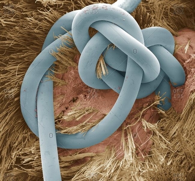 Sutured wound colored scanning electron micrograph (SEM) of a suture in a dog's skin wound