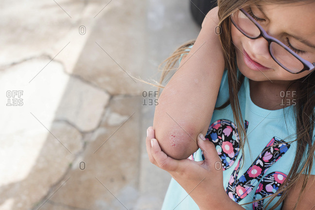 Girl looking at scraped elbow