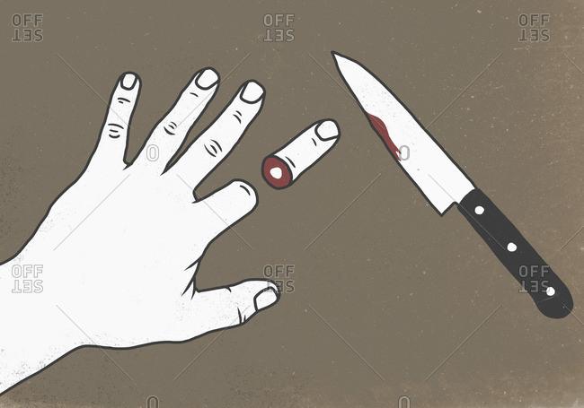 Illustration of chopped finger by knife