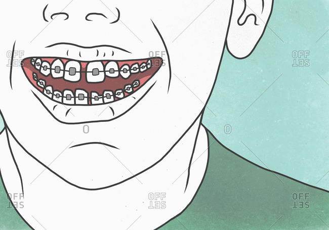 Illustration of man with braces representing dental health