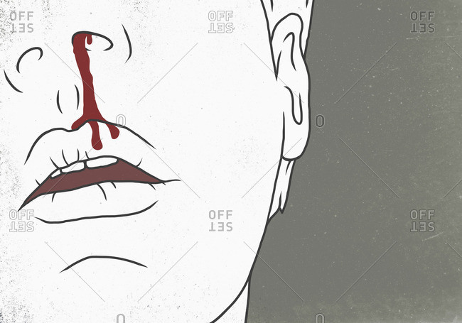 Illustration of man with bleeding nose representing injury