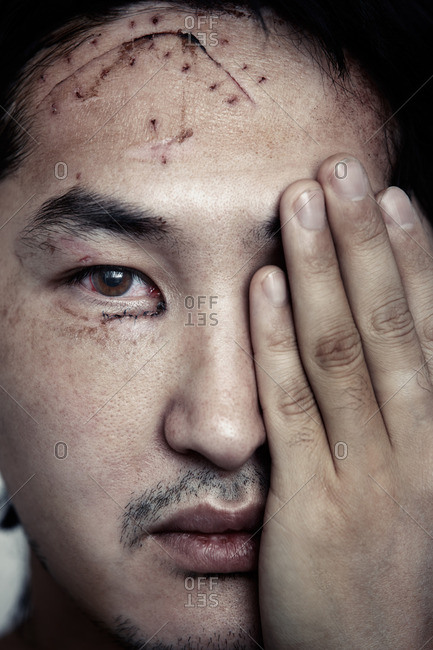 Man with physical injuries due to assault and accidents