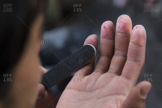 An Injured Fingertips Of A Climber Worn Out By Climbing In The Harsh Granite