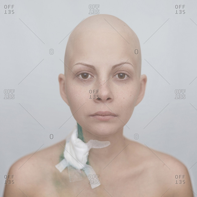 Bald Caucasian cancer patient with bandage on neck
