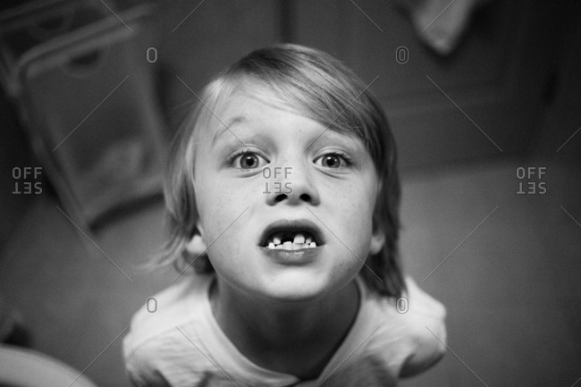 Boy showing his missing front tooth
