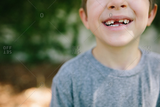 Boy with missing baby teeth and permanent teeth coming in