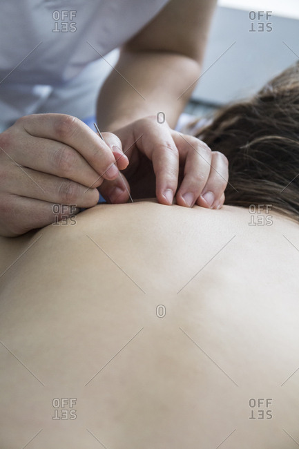 Physiotherapist holding a patient's back and performing a dry needling procedure