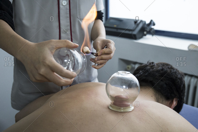 Hands of a therapist performing a cupping procedure on a client's back