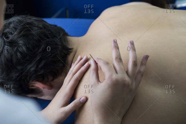 Hands of a physiotherapist treating a patient's back with a dry needling procedure