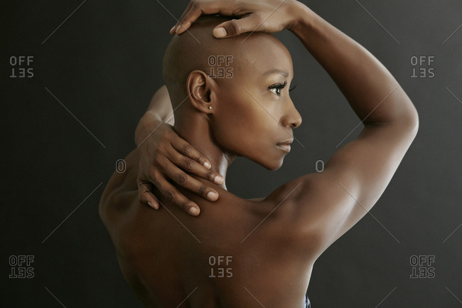 African American woman holding her bald head