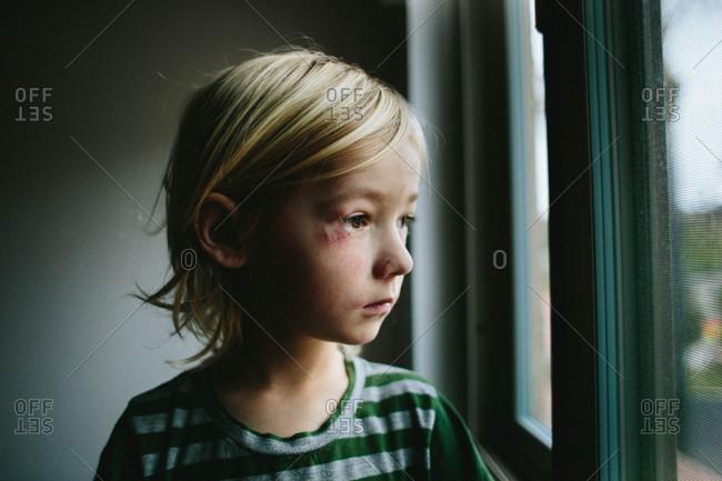 Boy with black eye by window