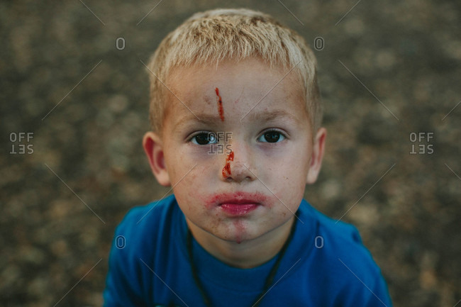 Boy with a bloody face