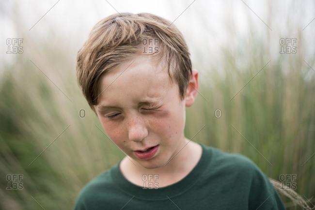 A boy with black eye outside
