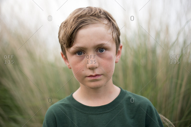 A boy by field with black eye