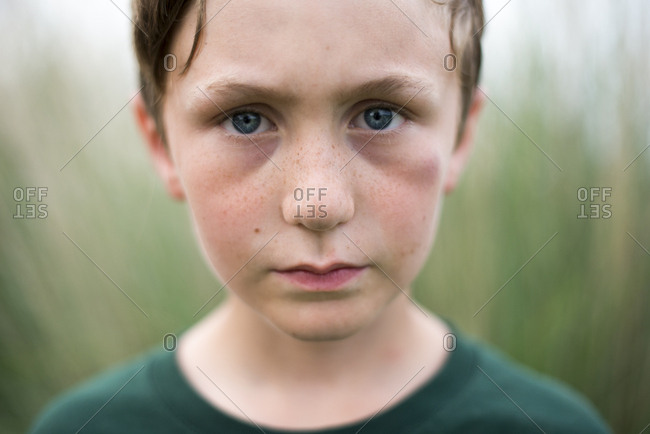 Close up of boy with eye bruise