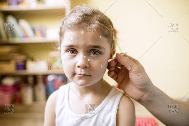 Portrait of girl having chickenpox