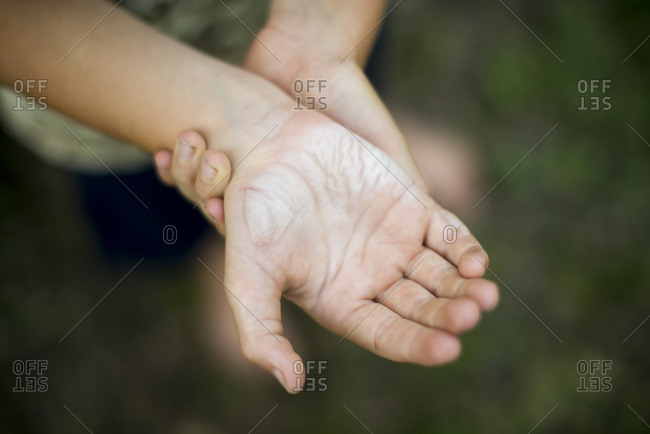 Boy's burned hand in close up