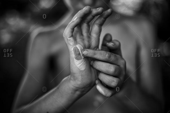 Boy peeling a burn blister