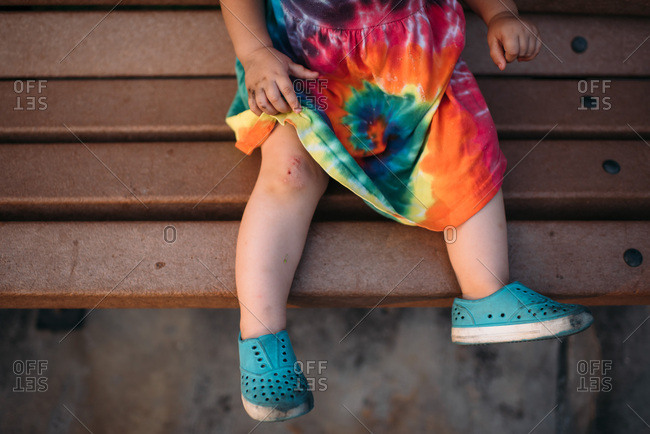 Toddler pulling up her dress to show her scraped knee
