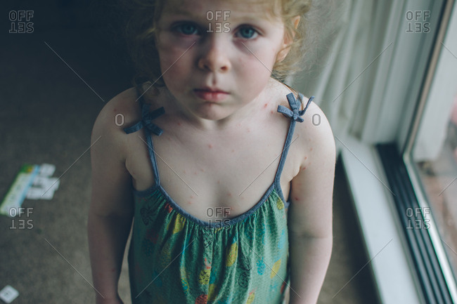 Portrait of young girl with chicken pox rash